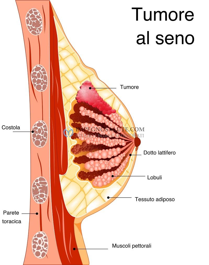 Iter diagnostico dei noduli della mammella