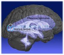 Emorragia cerebrale intraventricolare nel neonato