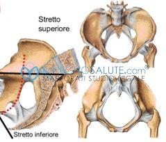 Si parla di sproporzione feto pelvica, o sproporzione cefalo pelvica, quando i diametri del bacino della madre sono minori rispetto a quelli del feto.