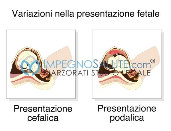 presentazione podalica del feto