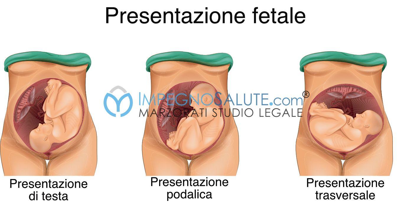 presentazione cefalica