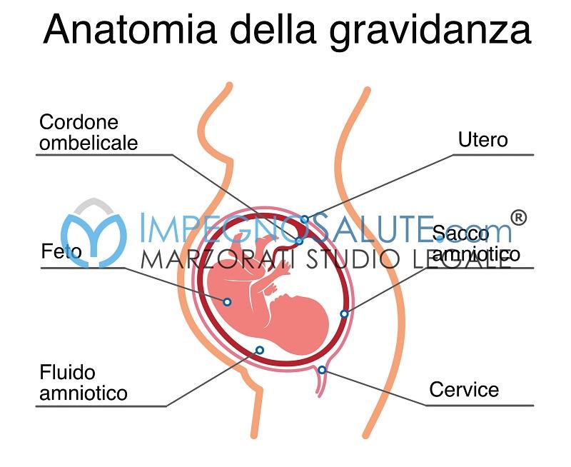 Amnioinfusione malasanità errore medico