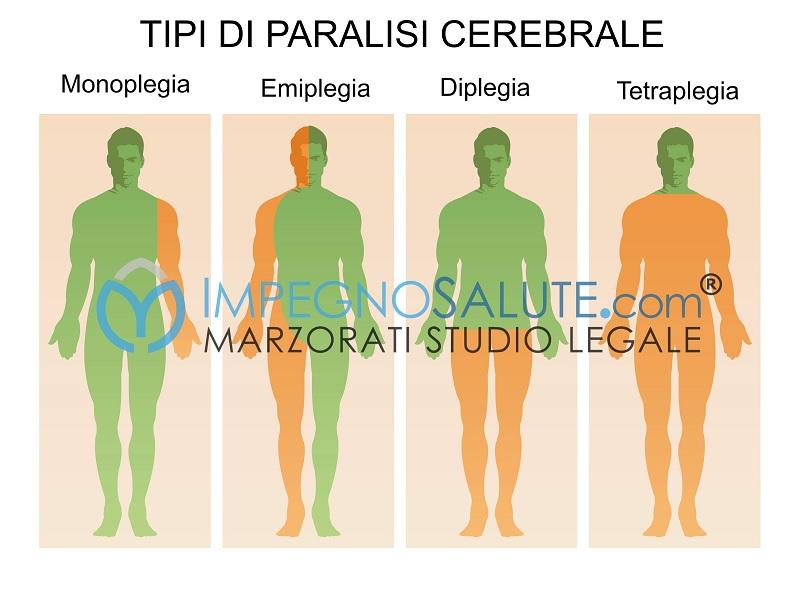 Tipi di paralisi cerebrale monoplegia-emiplegia-diplegia-tetraplegia