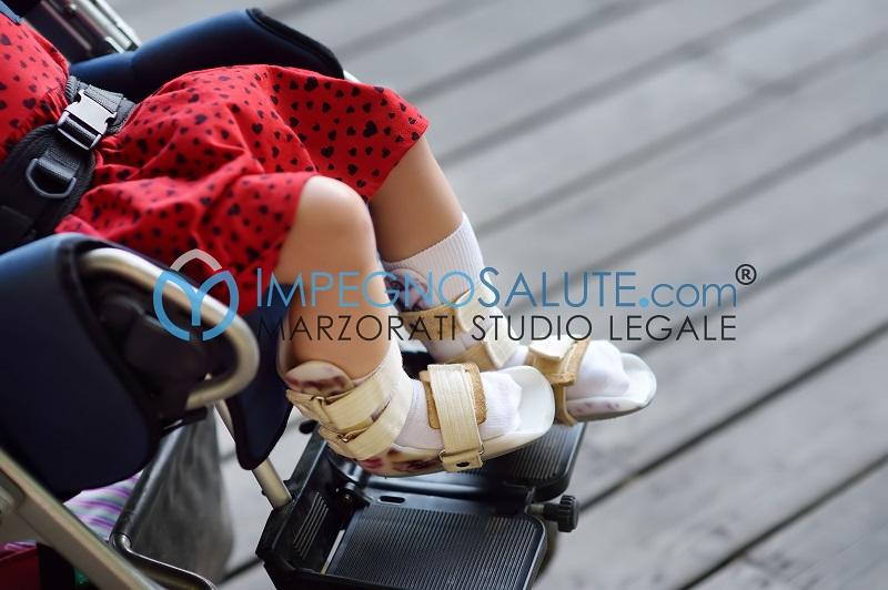Paralisi arti inferiori