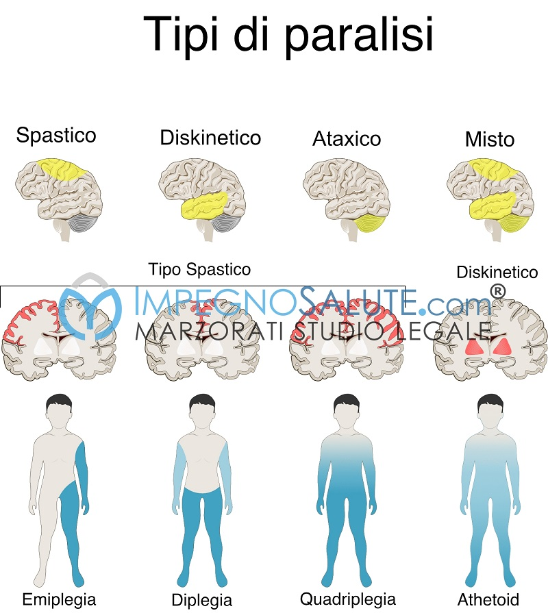 Tipi di paralisi