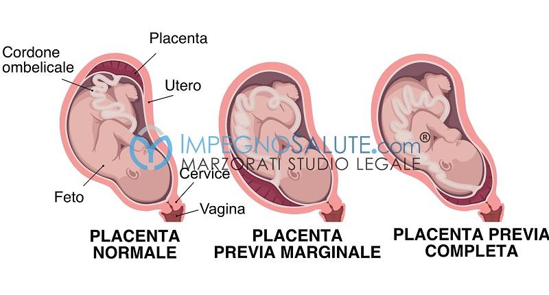 Tipi di placenta previa
