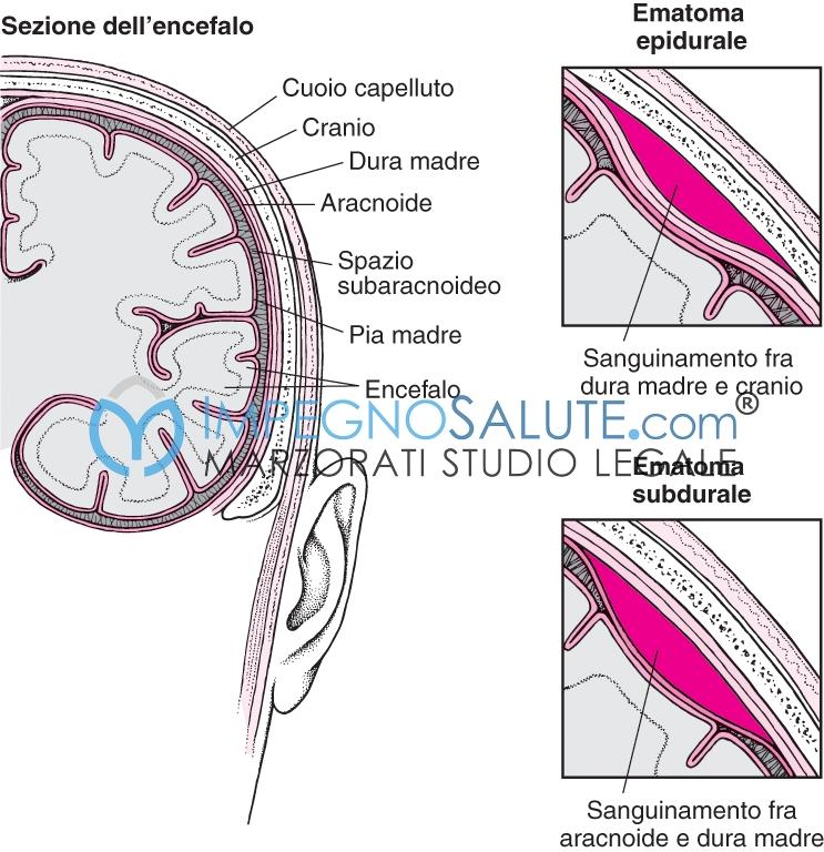 Ematoma subdurale nel neonato 2