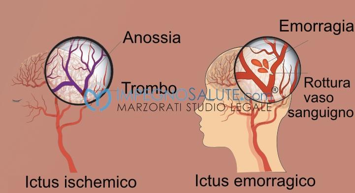 Ictus Il neonato con ischemia cereb