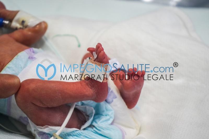 Convulsioni neonatali errore medico malasanità