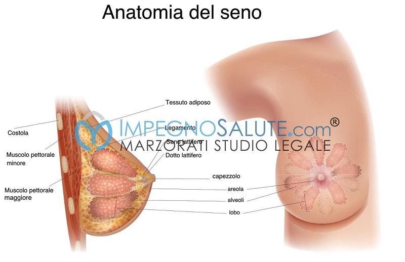 Anatomia del seno avvocato malasanità errore medico