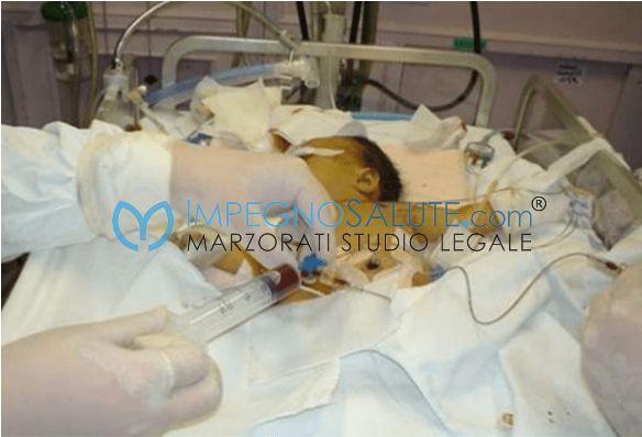Exanguinotrasfuzione e ittero neonatale malformazione mala