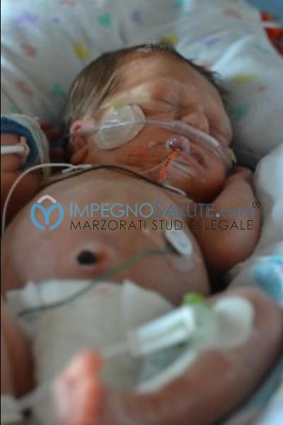 Decompressione gastrica malformazione malattie feto