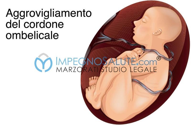 Giri del cordone ombelicale_malformazioni malattie del feto