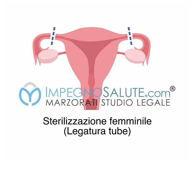 Sterilizzazione tubarica procreazione assistita