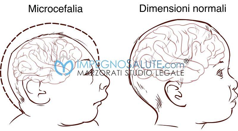 Sviluppo ridotto del cranio