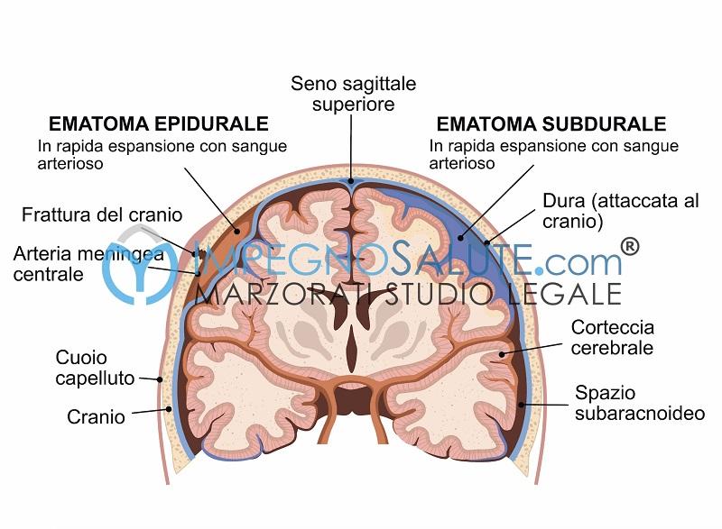 Ematoma cervello