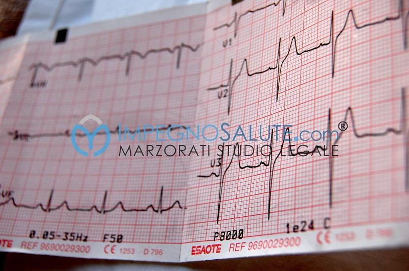 Tracciato elettrocardiogramma
