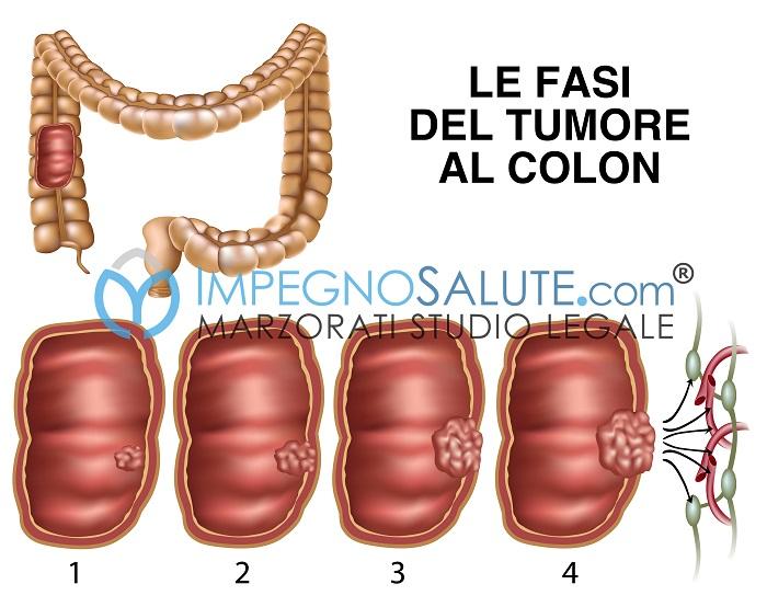 Fasi tumore al colon