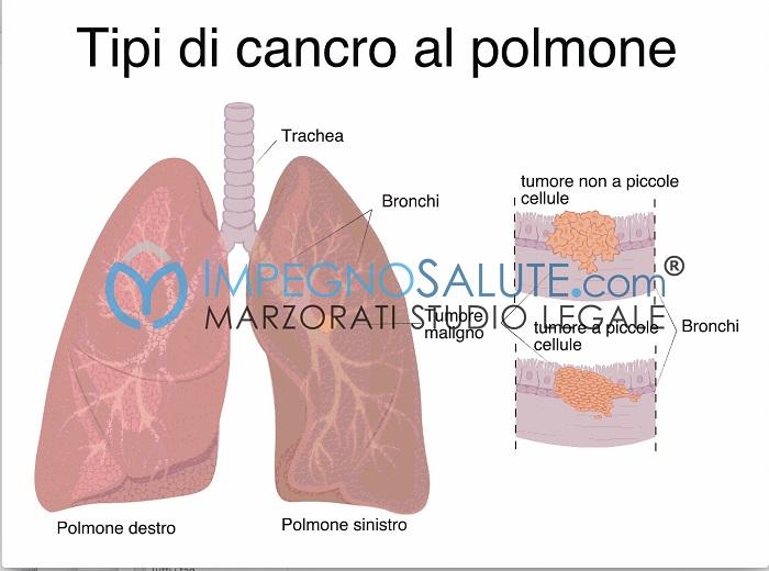 Tipi di cancro al polmone