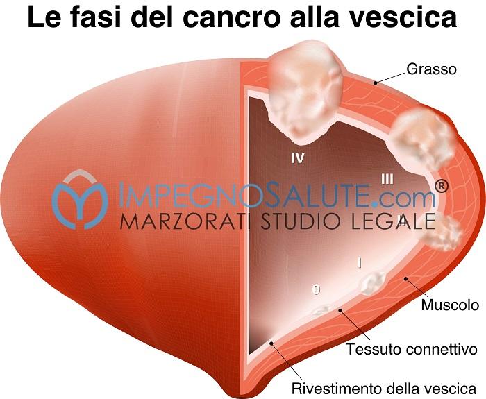 Stadi tumore vescica