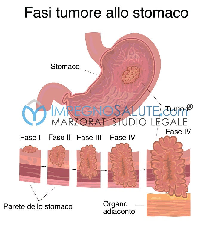 stadi cancro stomaco