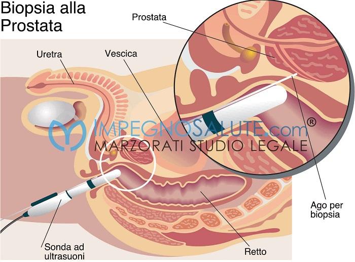 Biopsia prostata